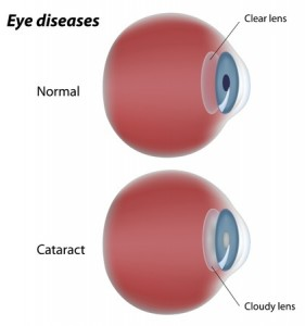 image comparing a normal eye with one suffering from cataracts