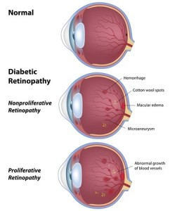 image showing the eye condition Diabetes Retinopathy