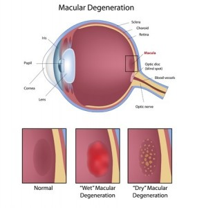 image showing macular degeneration an an eye